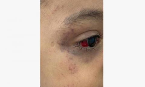 Menino de 3 anos é torturado com fio de celular pelo padrasto por quase 24h após fazer xixi na cama em MS